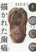 描かれた歯痛 白と黒、および神経からなる歯科医療挿画 wellcome collection