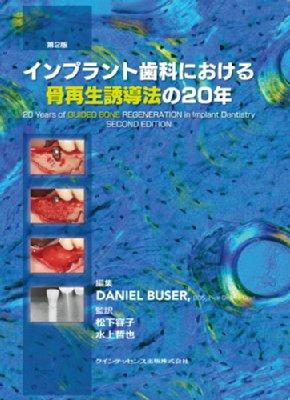 インプラント歯科における骨再生誘導法の20年